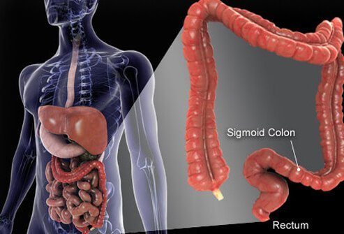 Photo of colon composite